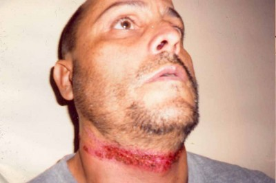 Injuries inflicted on dissident Raúl Arias