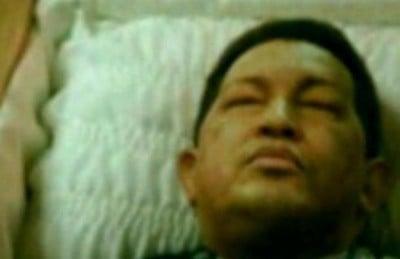 dead chavez