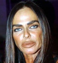 bad-plastic-surgery-michaela-romanini