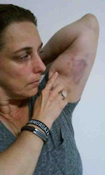 Tania Bruguera left bruised by state security