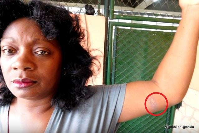 Berta Soler muestra quemadura en su brazo luego de represión